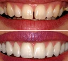 DentalVeneers