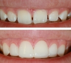 veneers-before-after2