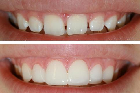 veneers-before-after2