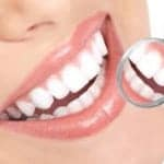 Dental Fillings Baton Rouge