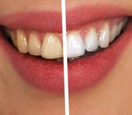 Teeth Whitening in Baton Rouge - Tiger Smile Family Dentistry