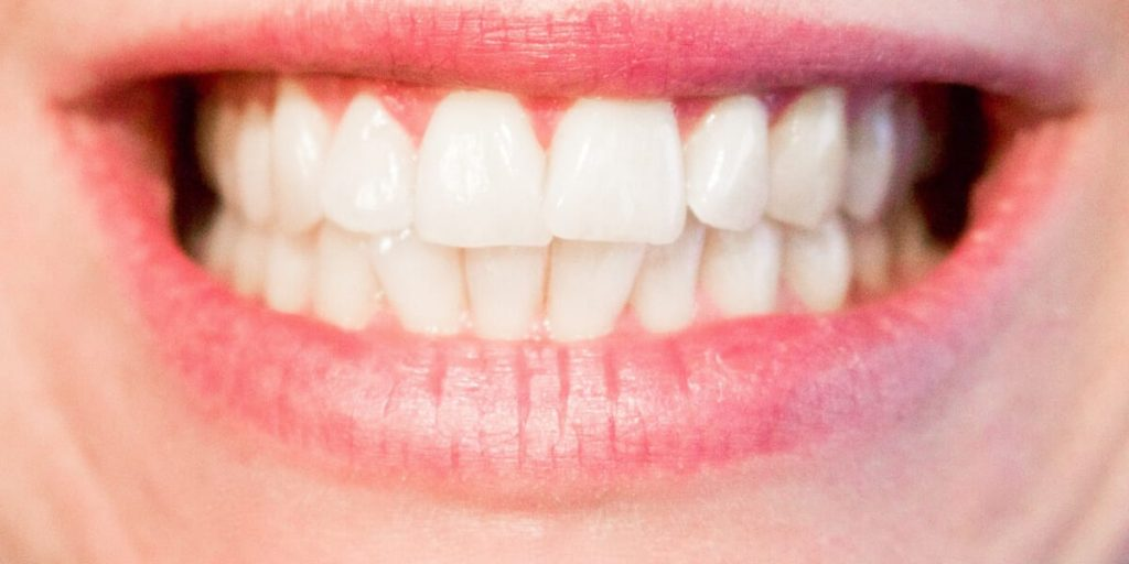 trustworthy invisalign baton rouge - Tiger Smile Family Dentistry