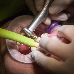 Restoration Dentistry - Tiger Smile Dental