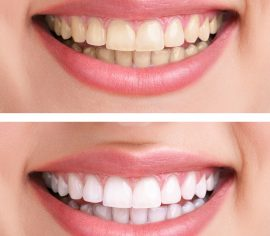 teeth whitening - Tiger Smile Family Dentistry