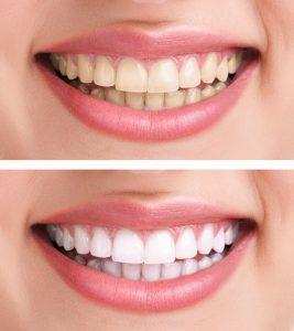 Teeth Whitening - Baton Rouge