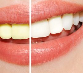 Teeth Whitening Procedure - Baton Rouge