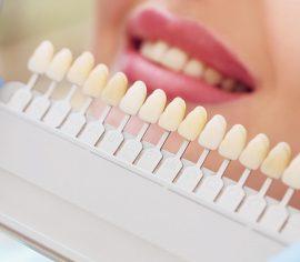 Tiger Smile Dental Implant